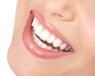1280788530_107830022_2-Blanqueamiento-Dental-Profesional-a-13-Madrid