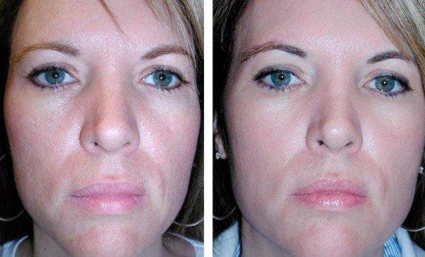 fotos-de-cicatrices-de-acne-antes-y-despues-exfoliacion-quimica