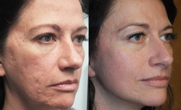 Glycolic, Azelaic, L-Lactic Acid (CS039) Corrective Skin ...