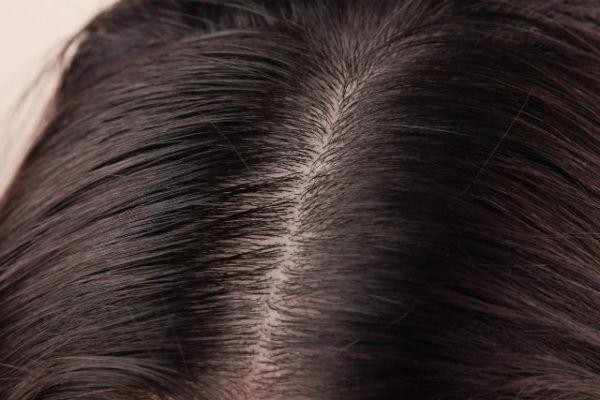 cuero-cabelludo-normal-2
