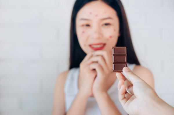 El chocolate no causa acné