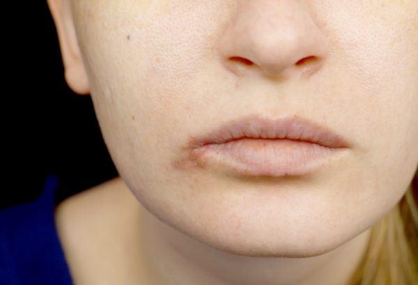 Síntomas del herpes de labios