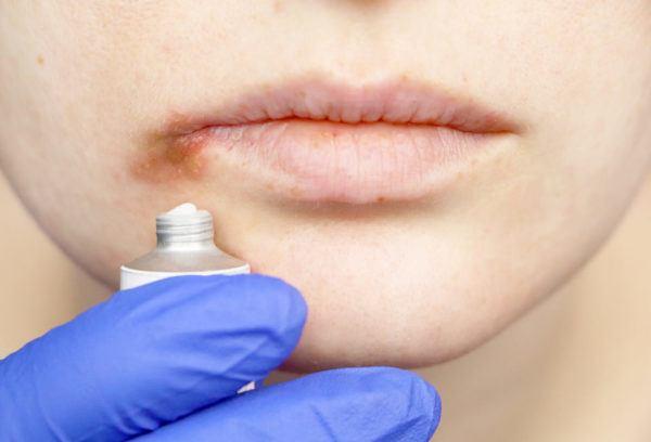 Consejos para mejorar el herpes labial